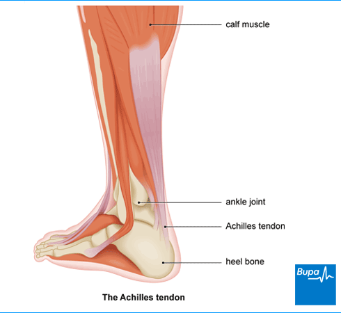 achilles tendon rupture – the facts | health | bupa uk, Human Body