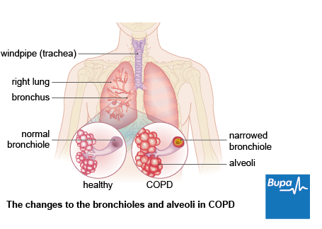 Image showing the changes to the bronchioles and alveoli in COPD