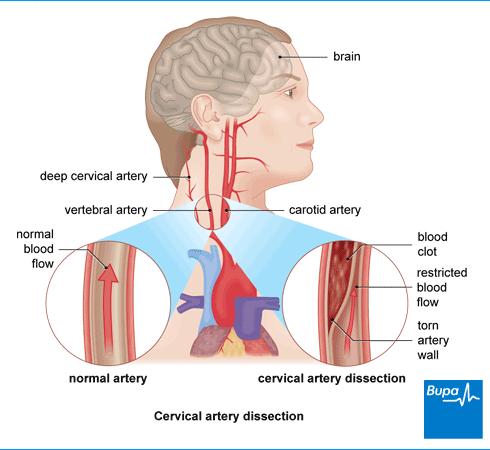 Image result for vertebral artery dissection