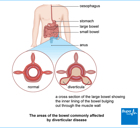 Image showing the areas of the bowel commonly affected by diverticular disease