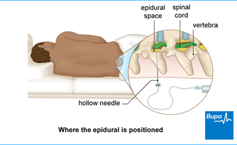 Image showing where the epidural is positioned