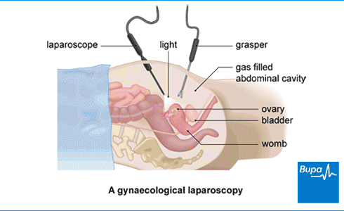 An image showing a gynaecological laparoscopy