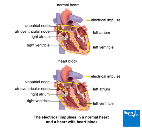 An image showing the electrical impluses in a normal heart and a heart with heart block