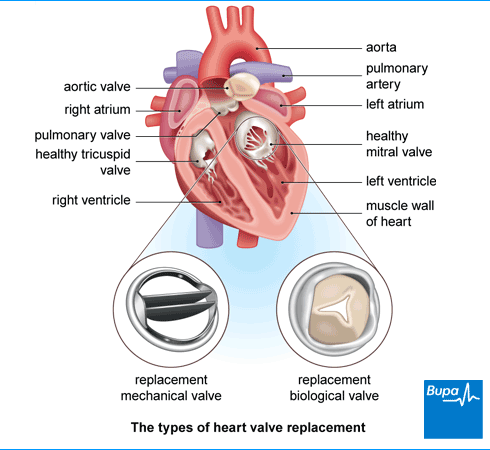 heart valve transplant What is heart valve repair or replacement surgery the heart is a pump made of muscle tissue it has 4 pumping chambers: 2 upper chambers, called atria, and 2 lower chambers, called ventricles valves between each of the heart's pumping chambers keep blood flowing forward through the heart.