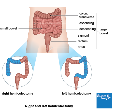 An image showing a right and left hemicolectomy