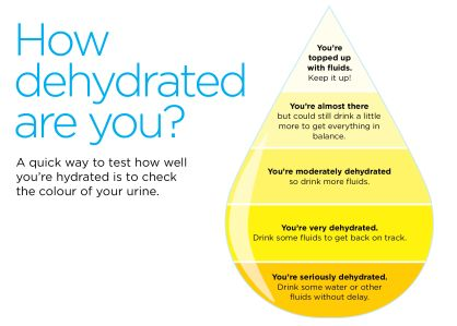 Image showing hydration level by urine colour