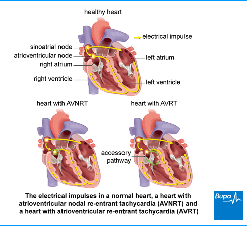 An image showing the electrical impulses in a normal heart, a heart with atrioventricular nodal re-entrant tachycardia (AVNRT) and a heart with atrioventricular re-entrant tachycardia (AVRT)