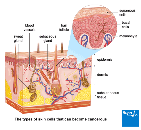 An image showing the types of skin cells that can become cancerous