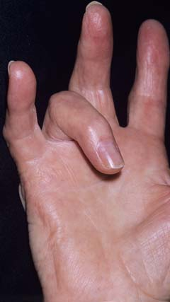 An image showing a hand with trigger finger