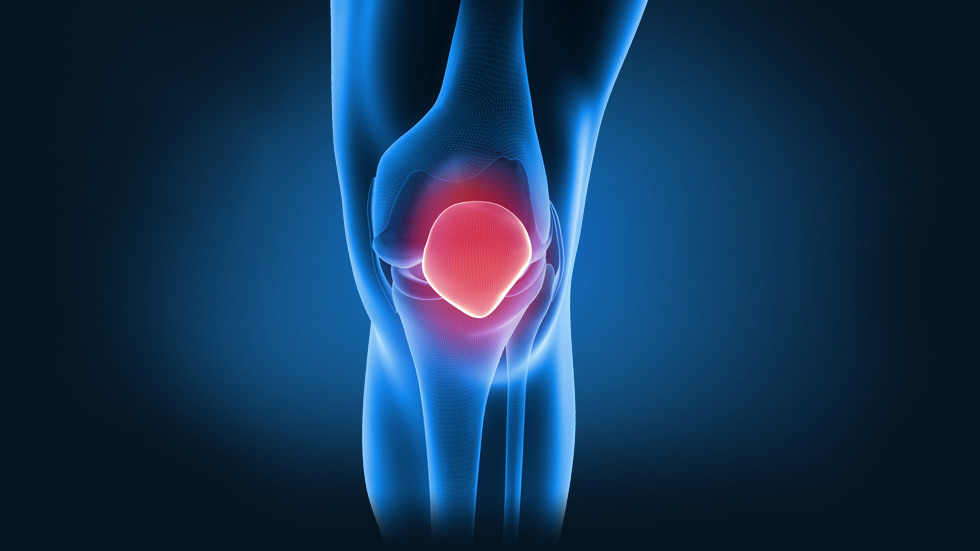 the causes effects and management of anterior crucial ligament acl injuries Cruciate ligament, and anterior cruciate liga-  mary prevention of acl injury  includes specific proprioceptive and  torque with enough force to cause a tear  contact  the effects of generalized joint laxity on risk of anterior.