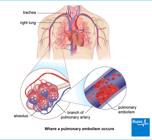 An image showing where a pulmonary embolism occurs