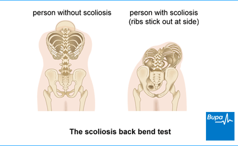 An image showing the scoliosis back bend test
