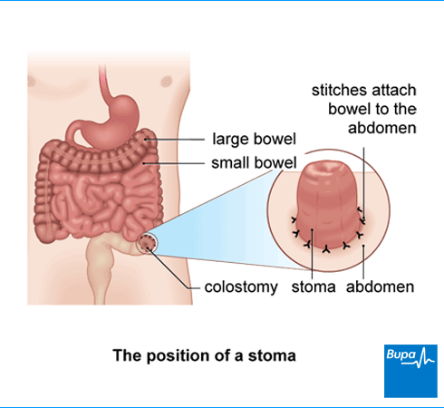 An image showing the position of a stoma