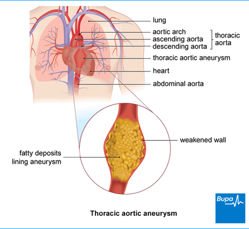 thoracic aortic aneurysm | health information | bupa uk, Human Body