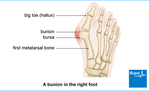 Bunions | Health information | Bupa UK