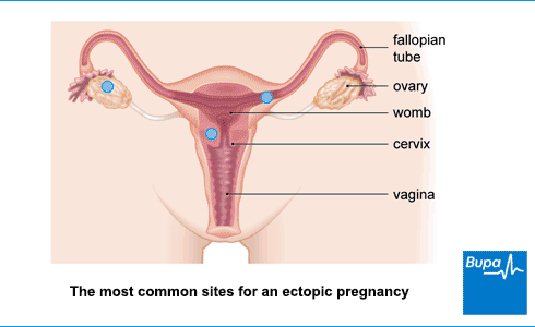 Ectopic pregnancy | Health Information | Bupa UK