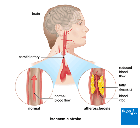 mild stroke causes and symptoms  Ischaemic stroke | Health Information | Bupa UK