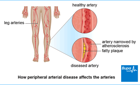 Peripheral arterial disease | Health Information | Bupa UK