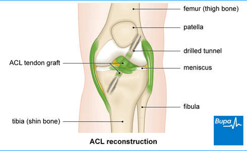 Image showing ACL reconstruction
