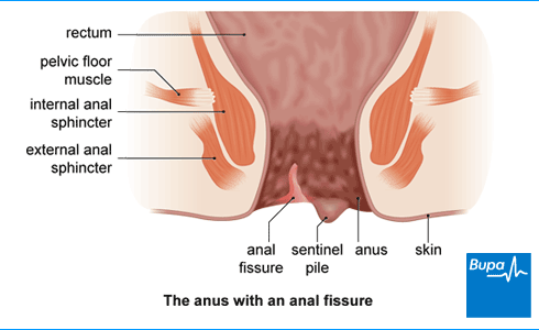 Causes of anal sphincter inflammation