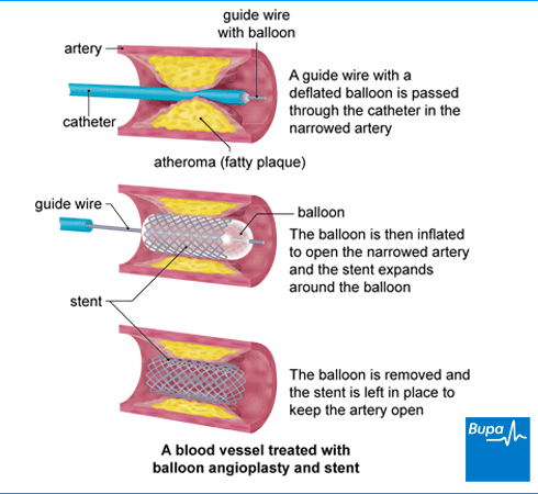 Image showing a blood vessel treated with balloon angioplasty and stent
