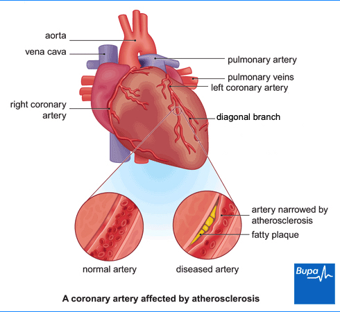 Coronary heart disease the facts health bupa uk image showing a coronary artery affected by atherosclerosis ccuart Image collections