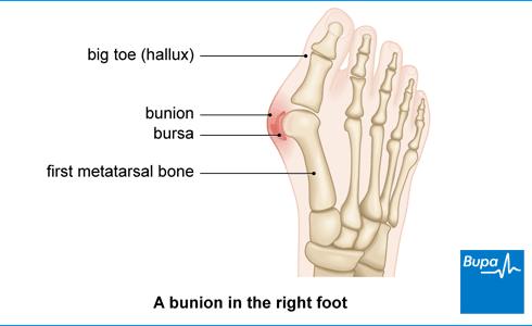 Bunion Surgery Health Information Bupa Uk