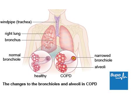 does salbutamol inhaler contain steroids