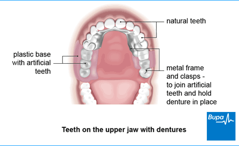Replacing Missing Teeth Health Information Bupa Uk