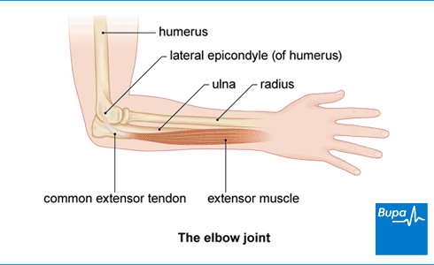Tennis Elbow Treatment Uk