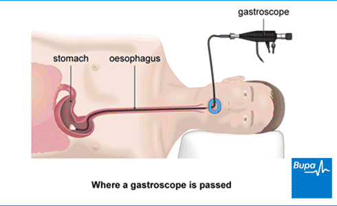An image showing where a gastroscope is passed