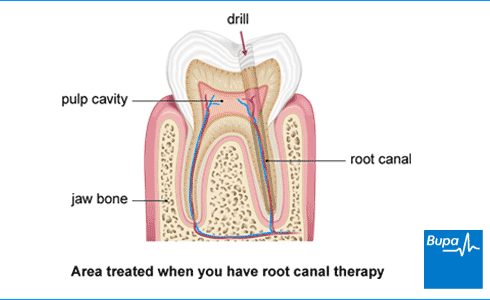 An image showing the area treated when you have root canal therapy