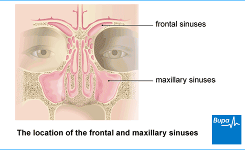 An image showing the location of the frontal and maxillary sinuses