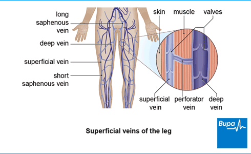 An image showing the superficial veins of the leg