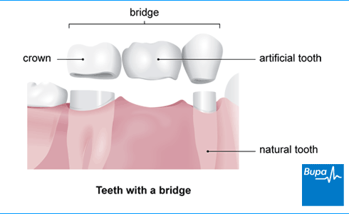 Replacing missing teeth health information bupa uk an image showing teeth with a bridge ccuart Gallery