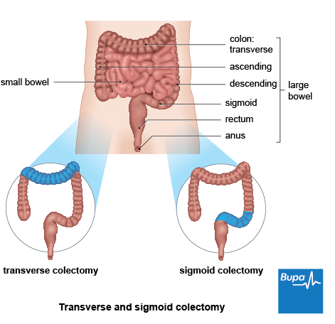 An image showing a transverse and sigmoid colectomy