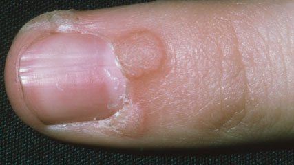 An image showing warts on a person's finger